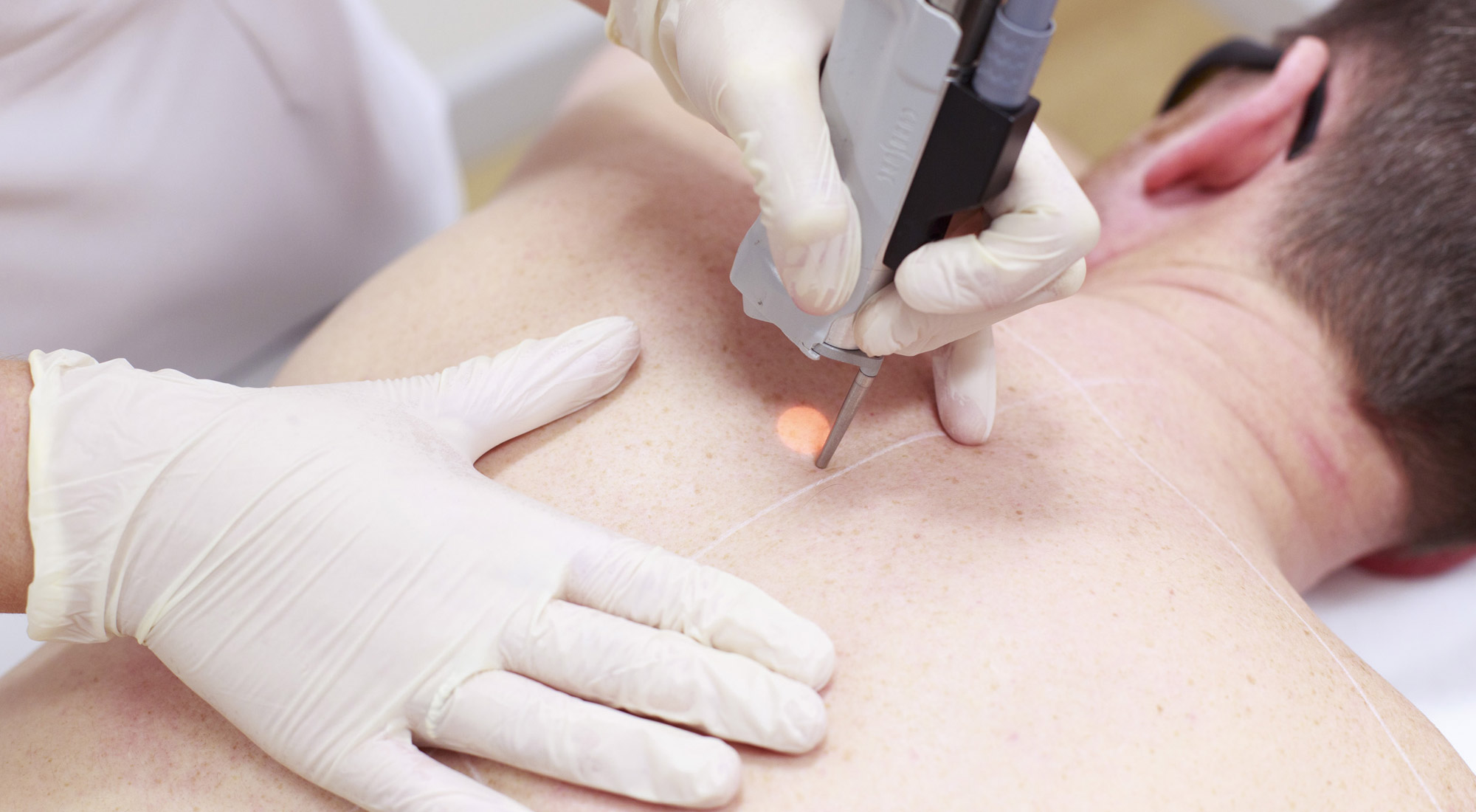 Acquire The Merits Of Laser Hair Removal Treatment